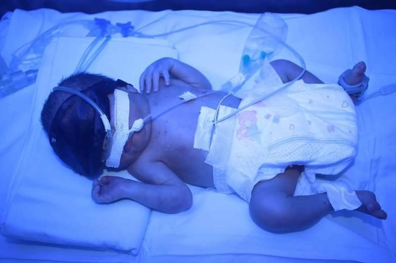 Cứu sống bé sinh non 1,3 kg bị suy hô hấp  - ảnh 1