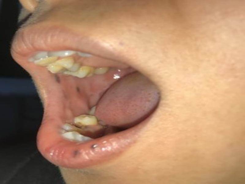 Phát hiện bệnh hiếm từ miệng có nhiều nốt sậm màu - ảnh 1