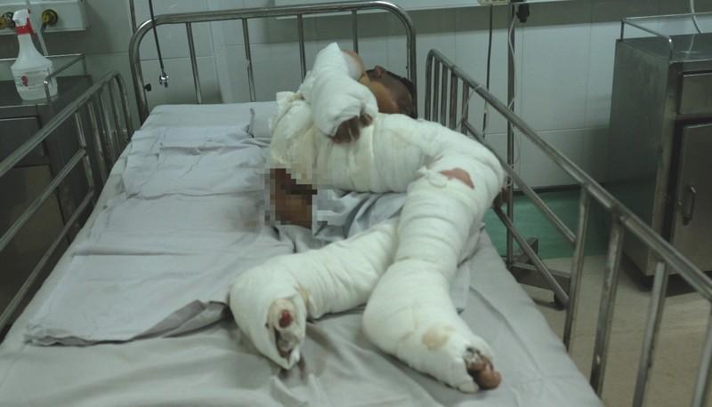 Vụ nổ hầm cầu ở Bình Dương: 2 bé bị bỏng nặng - ảnh 1