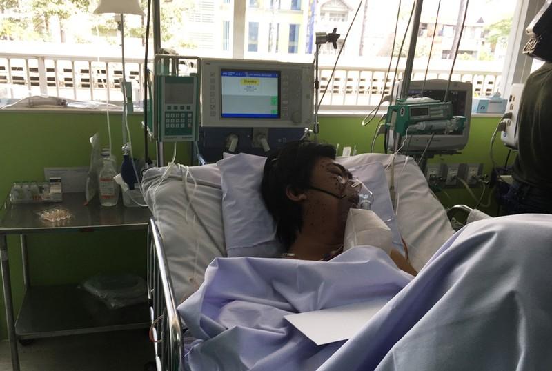 Còn 40 bệnh nhân đang điều trị sau vụ cháy Carina - ảnh 1