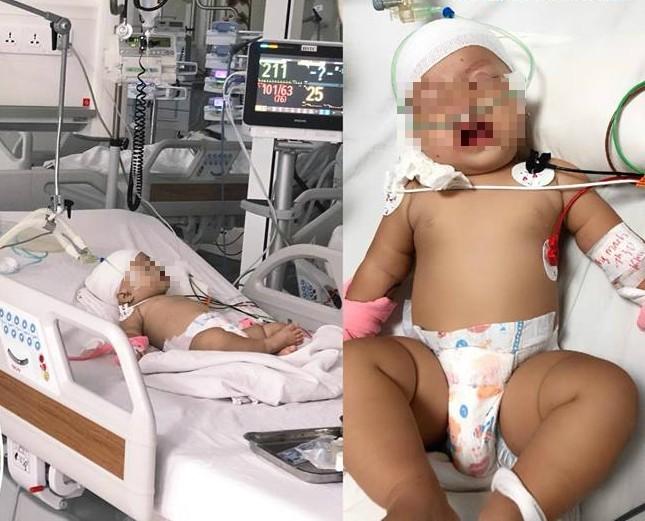 Kinh hoàng bé 14 tháng tuổi bị khỉ cắn rách đầu nguy kịch - ảnh 1