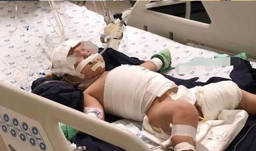 Mắc dây ấm đun siêu tốc, bé 20 tháng tuổi bỏng nặng - ảnh 1