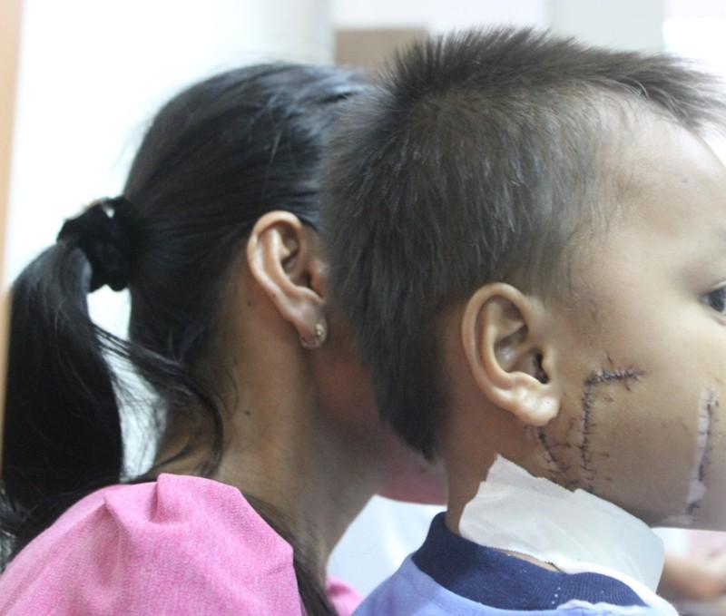Kinh hoàng bé trai bị cánh quạt công nghiệp cắt thấu xương hàm - ảnh 1