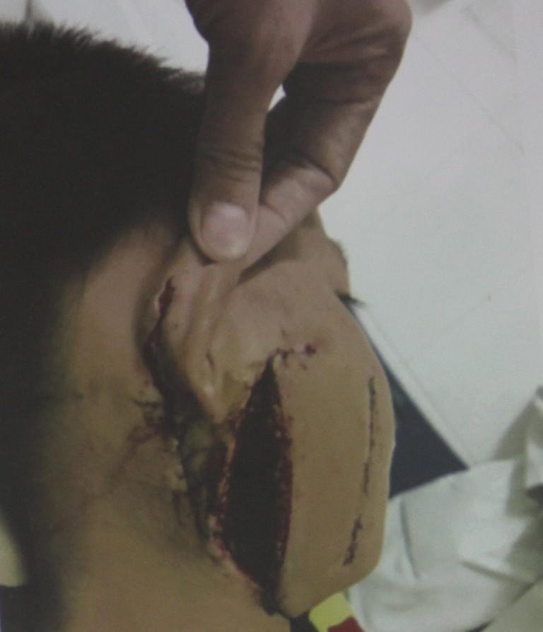 Kinh hoàng bé trai bị cánh quạt công nghiệp cắt thấu xương hàm - ảnh 2