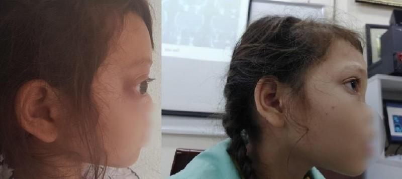 Giải phóng khối u đeo bám bé gái người Cadong 7 năm ròng - ảnh 2