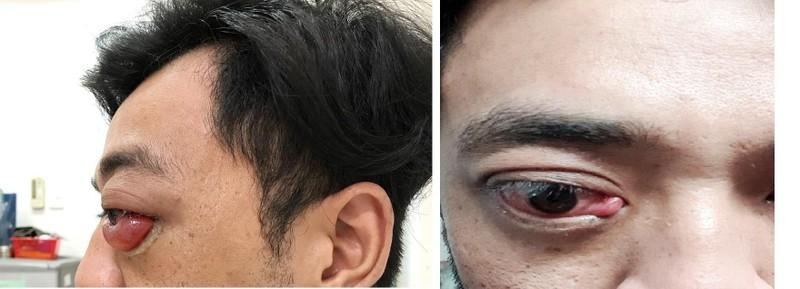 Chàng trai đột nhiên lồi mắt, suýt mù sau 2 năm bị té - ảnh 1