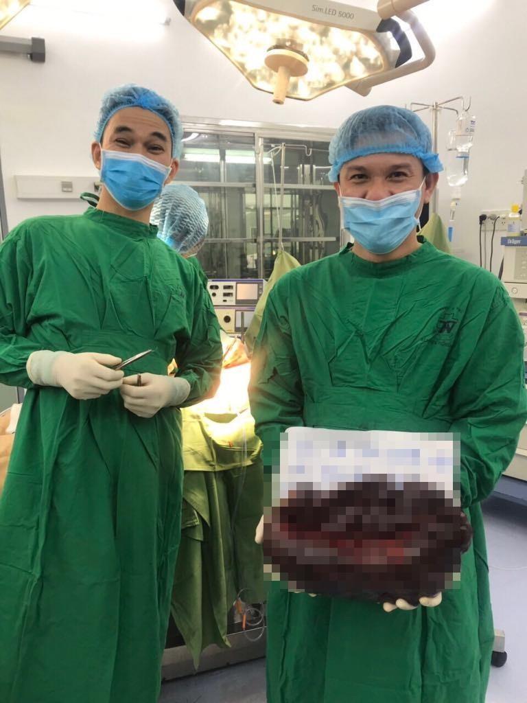 Căn bệnh khiến lá lách cô gái nặng hơn 5 kg, dài nửa mét - ảnh 1