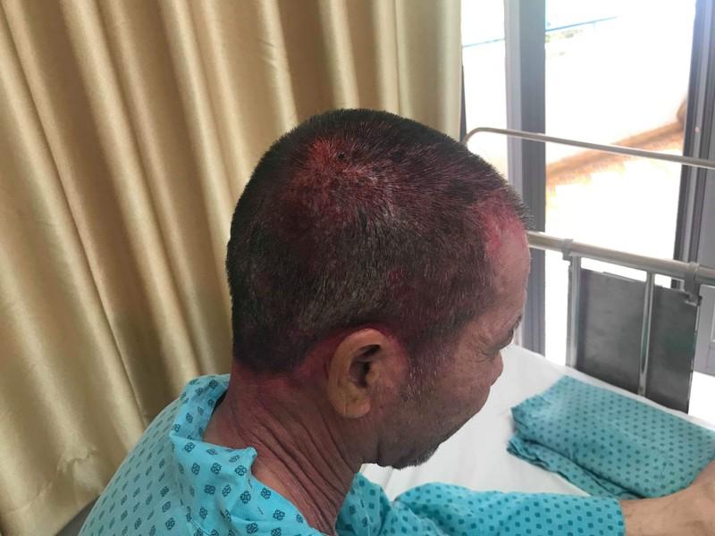 Nhập viện cấp cứu sau khi dùng thuốc nhuộm tóc - ảnh 1