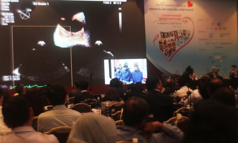 Bác sĩ Việt Nam trình diễn can thiệp tim với thế giới - ảnh 1