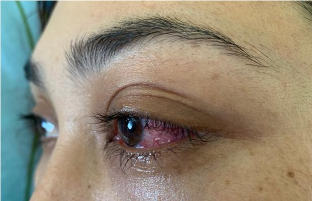 Căn bệnh không ngờ khiến mắt cô gái suýt mù   - ảnh 1