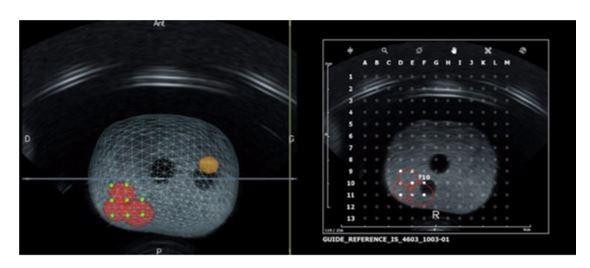 Phương pháp tránh bỏ sót ung thư tuyến tiền liệt sớm - ảnh 1
