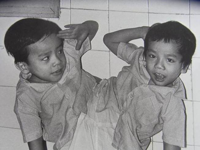 Chia sẻ của bác sĩ mổ tách cặp song sinh Việt-Đức 32 năm trước - ảnh 4