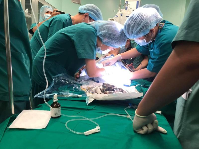 Cận cảnh ca đại phẫu thuật tách cặp Trúc Nhi - Diệu Nhi  - ảnh 5