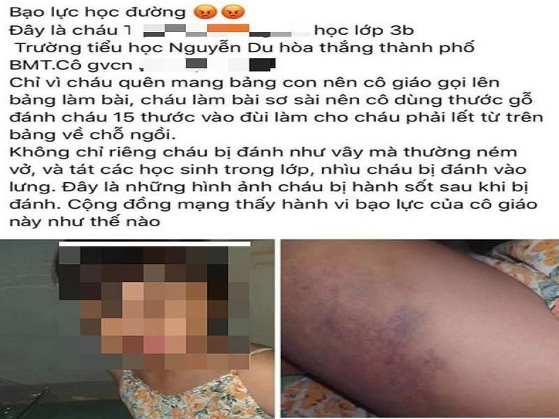 1 học sinh lớp ba bị cô giáo đánh bầm tím đùi - ảnh 1