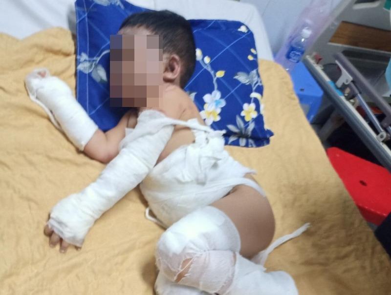 Bình Dương: 1 gia đình bị ném bom xăng, 2 bé trai bỏng nặng - ảnh 2