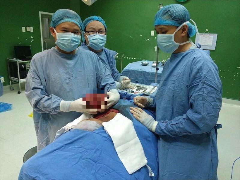 Cắt bỏ khối u 'khủng' chèn mạch cổ cho bệnh nhân - ảnh 2