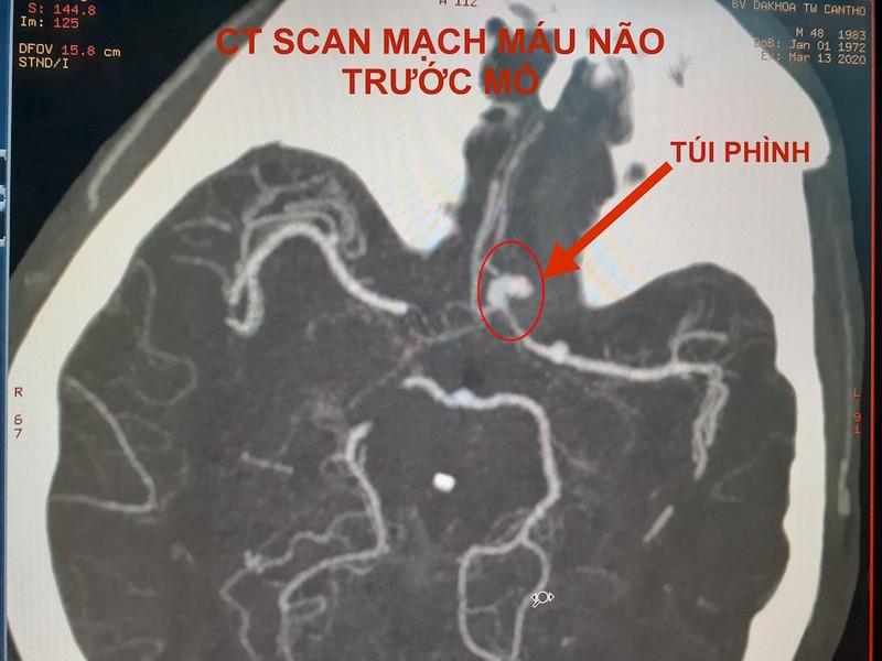 Hình ảnh CT Scan mạch máu não trước và sau vi phẫu kẹp túi phình. Ảnh: HẢI DƯƠNG 1