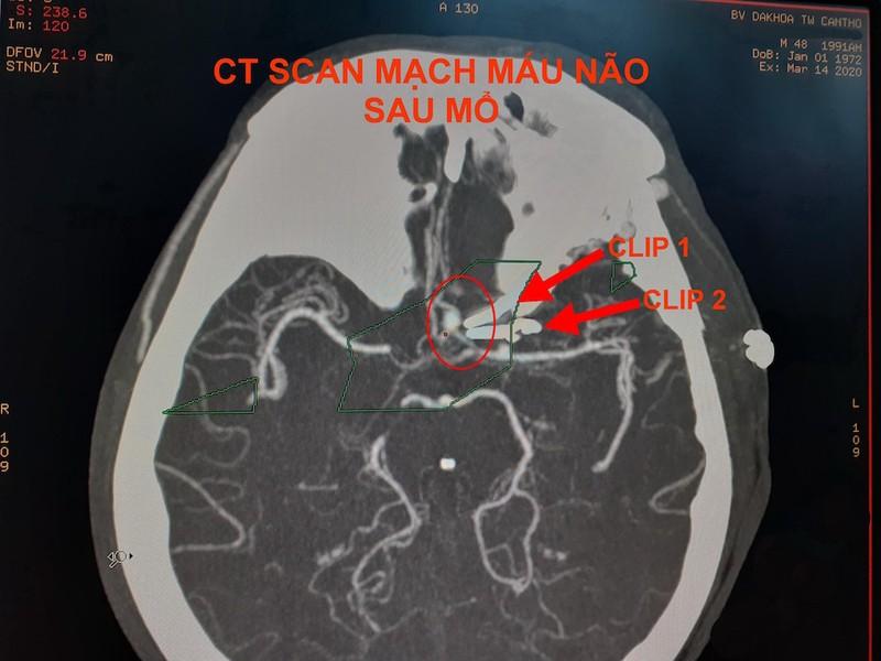 Hình ảnh CT Scan mạch máu não trước và sau vi phẫu kẹp túi phình. Ảnh: HẢI DƯƠNG 2