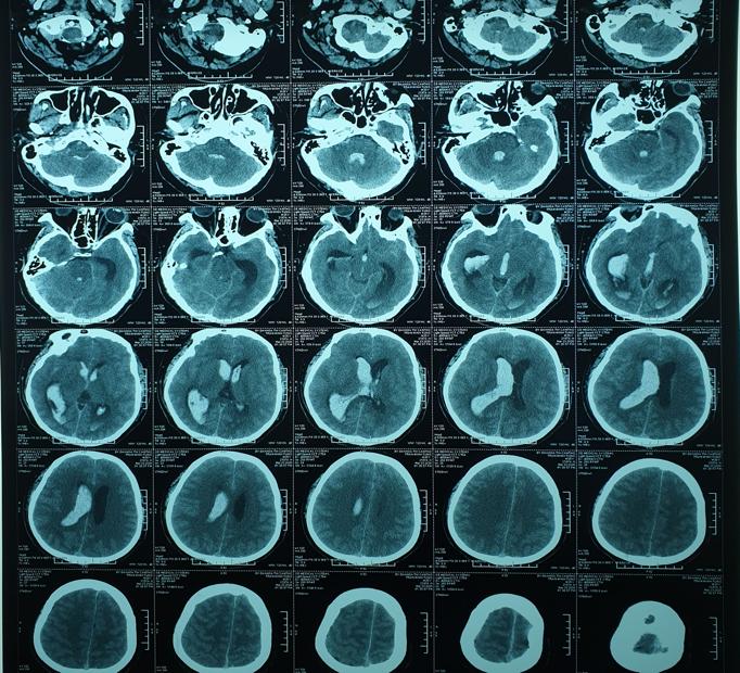Hình ảnh chụp CLVT sọ não trước và sau mổ. Ảnh: HẢI DƯƠNG 1