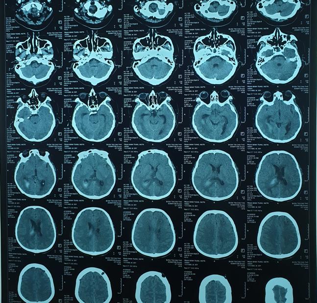 Hình ảnh chụp CLVT sọ não trước và sau mổ. Ảnh: HẢI DƯƠNG 2