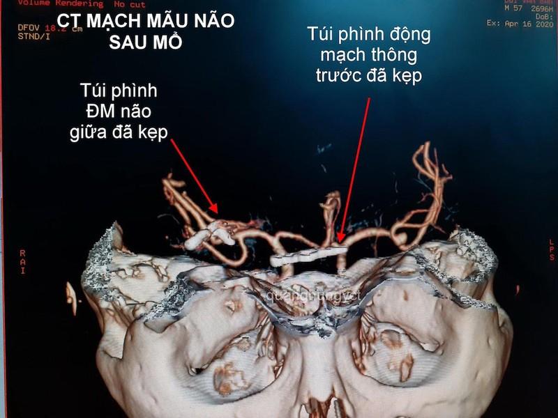 Hình ảnh CT Scan mạch máu não trước và sau can thiệp. Ảnh: HẢI DƯƠNG 2
