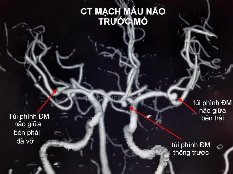 Hình ảnh CT Scan mạch máu não trước và sau can thiệp. Ảnh: HẢI DƯƠNG 1