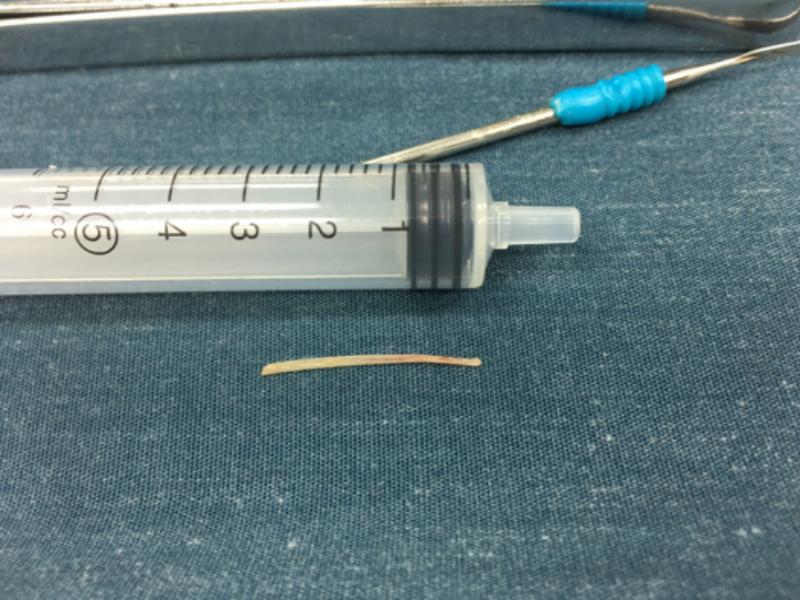 Lấy xương cá nằm trong thực quản bé gái suốt 5 tháng - ảnh 1