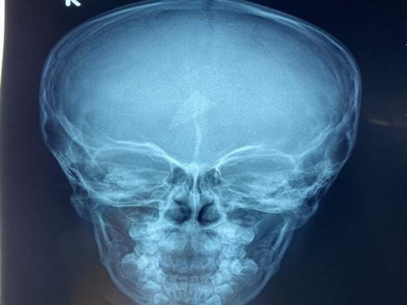 Chơi đùa, bé trai té ngã bị mảnh kính găm trong trán 2 ngày - ảnh 1