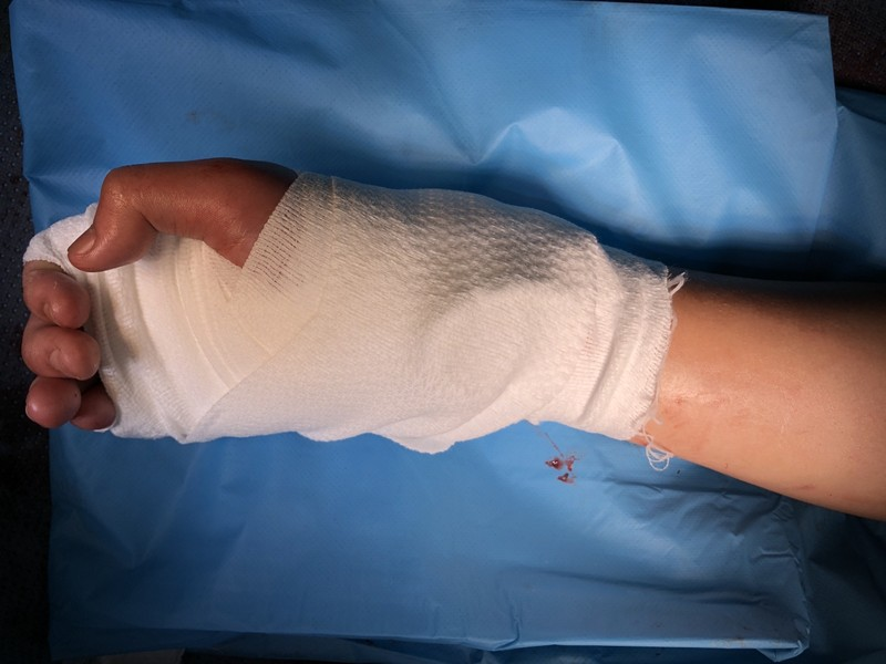 Nối bàn tay bị chém đứt lìa không cần chỉ khâu cho thiếu niên 17 tuổi - ảnh 2