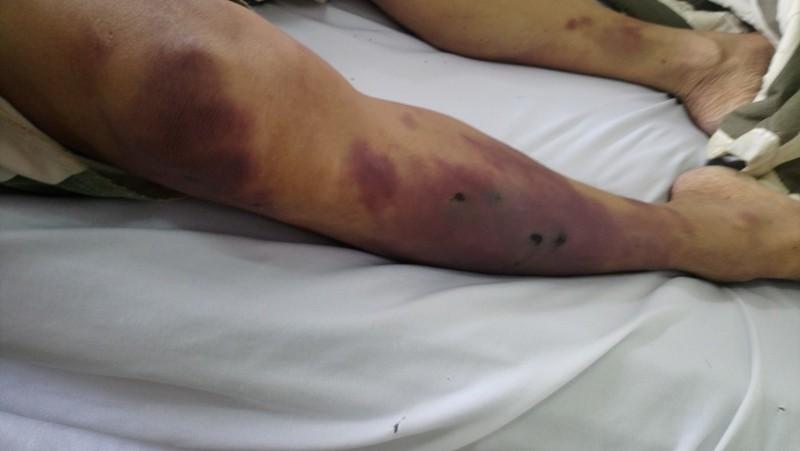 Phạm nhân chết ở nhà tạm giữ Châu Đức bị đánh bằng gậy cao su - ảnh 1