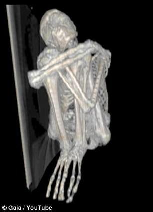 Bí ẩn xác ướp có 3 ngón tay nghi người ngoài hành tinh - ảnh 2