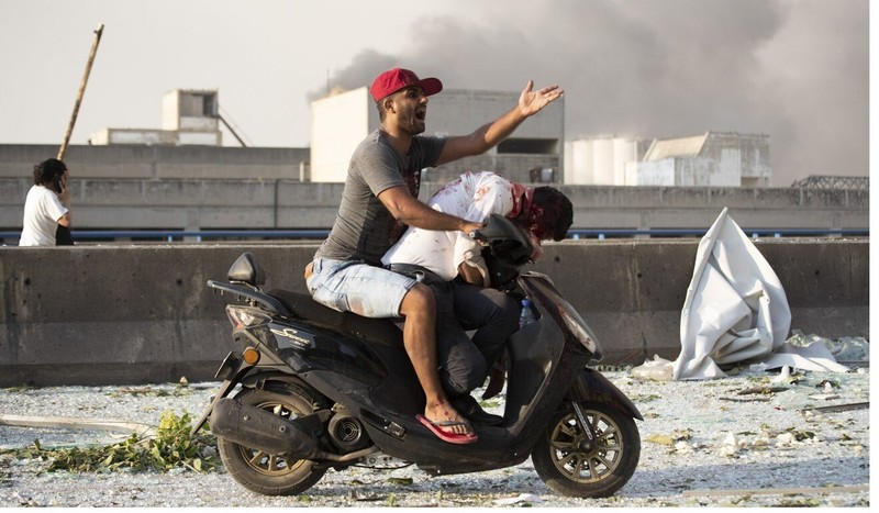 Nổ ở Lebanon: Người chết khắp nơi - ảnh 2