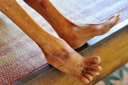Đôi chân của cụ Ngôn bị bệnh tật hành hạ, co quắp đau đớn