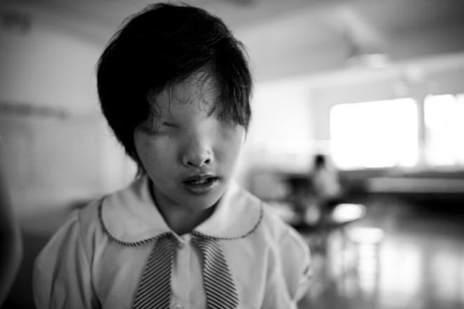 Trái tim như tan vỡ khi nhìn thấy các bé khiếm thị - ảnh 5