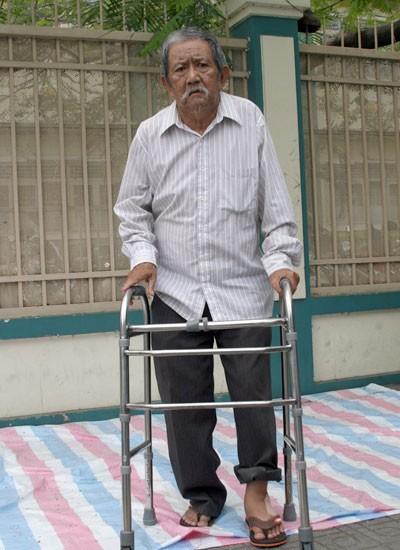Vừa xuất viện vì xuất bao tử nhưng chân còn bị bong gân, nghệ sĩ Mạc Can phải đi lại bằng nạng sắt . Hình ảnh này đã khiến nhiều người phải rơm rớm nước mắt