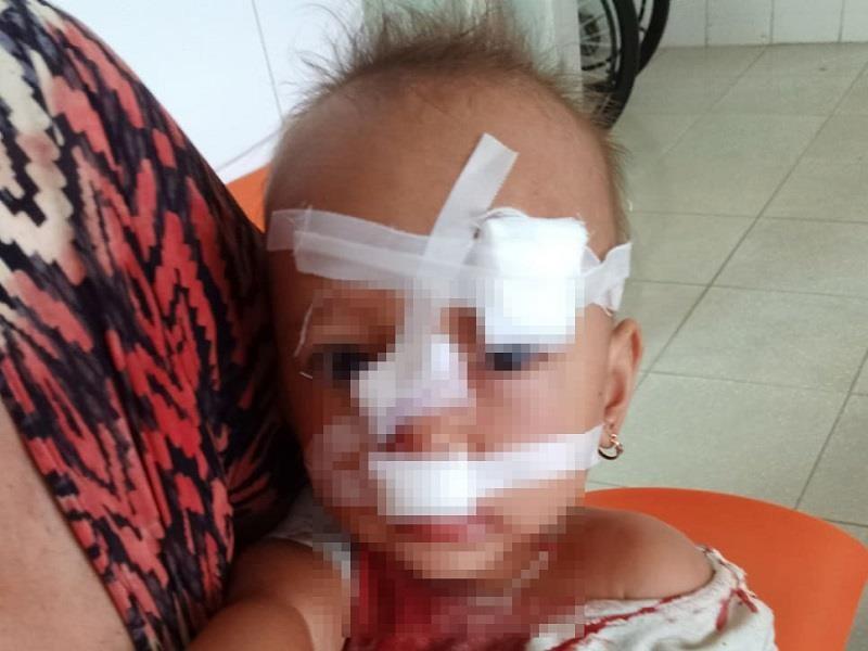 Cha mẹ cãi nhau, bé gái hai tuổi nhập viện khâu 12 mũi - ảnh 1