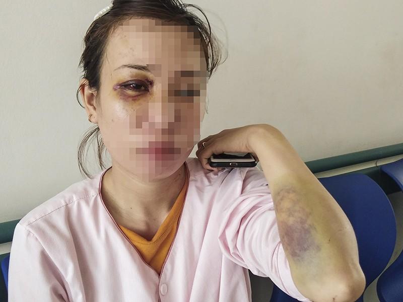 Người phụ nữ mang thai bị hàng xóm hành hung phải nhập viện - ảnh 1