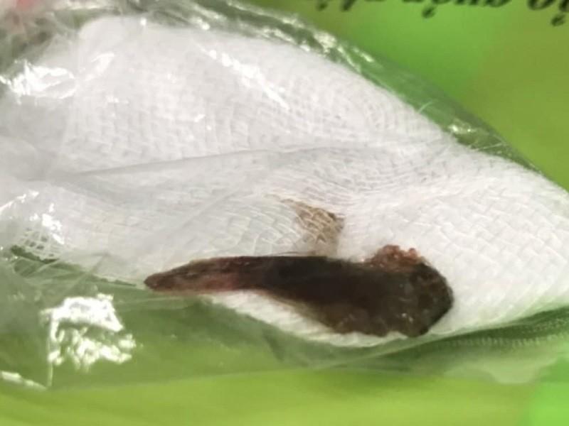 Dùng miệng gỡ lưới, bị cá dài 5,5 cm chui tọt vào phổi - ảnh 1