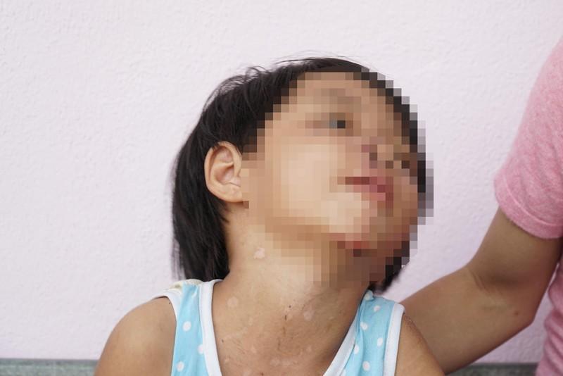 Xử nghiêm vụ bé gái 4 tuổi bị cha dượng bạo hành  - ảnh 1