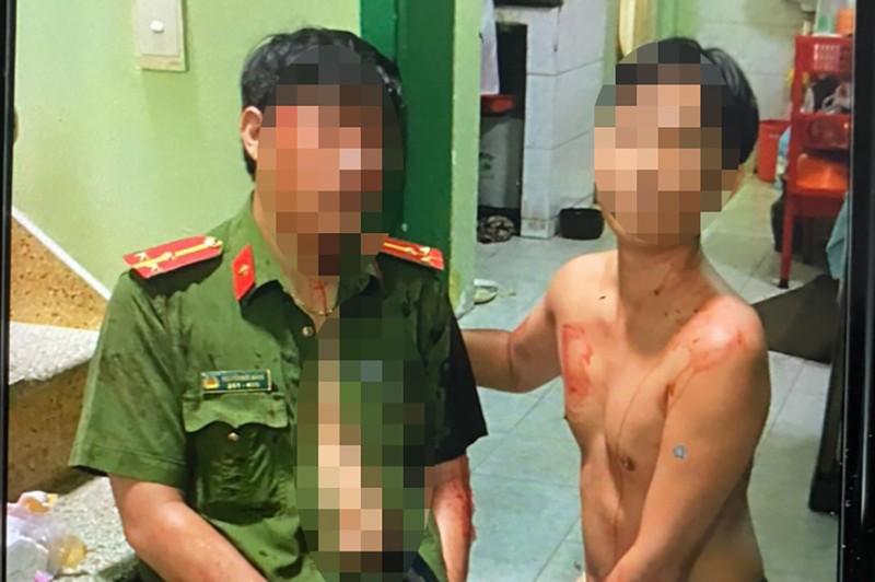1 Công an ở Tân Bình bị thanh niên nghi ngáo đá tấn công bằng dao - ảnh 2