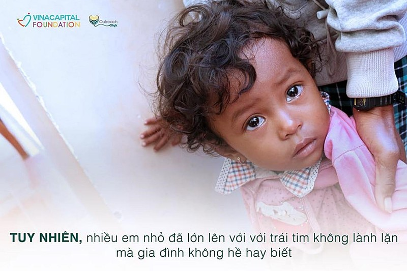 Khám sàng lọc tim bẩm sinh miễn phí cho trẻ em Bình Thuận - ảnh 1