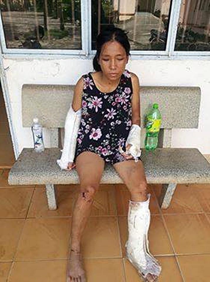 Phẫn nộ: Vợ có thai bị chồng đánh gãy tay chân, vỡ nền sọ - ảnh 1