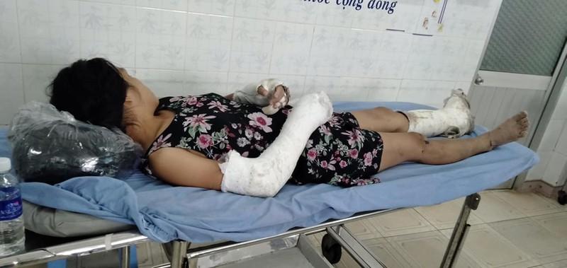 Thai phụ bị chồng đánh vỡ nền sọ, gãy tay bất ngờ trốn viện - ảnh 1