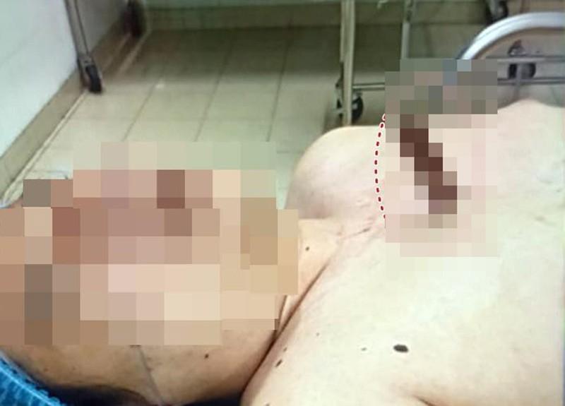 Cấp cứu bệnh nhân bị 1 con dao cắm giữa ngực - ảnh 1