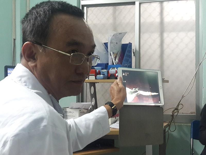Nuốt phải mũi khoan sau khi đi làm răng - ảnh 1