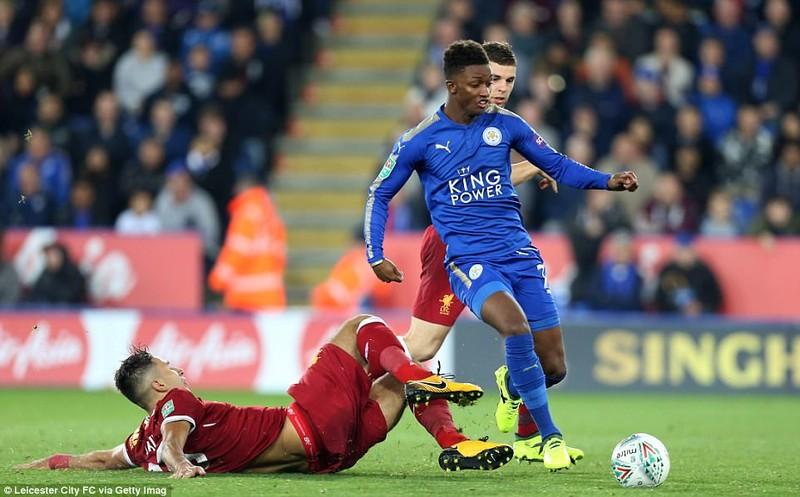 Liverpool bị loại khỏi EFL Cup: Sốc và không sốc - ảnh 4