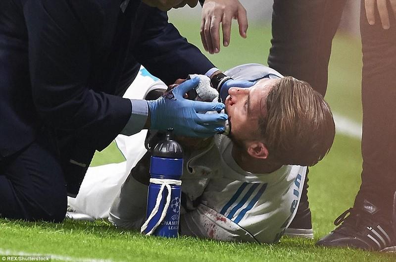 Derby thành Madrid nhạt nhòa, bạo lực và penalty... hụt - ảnh 3