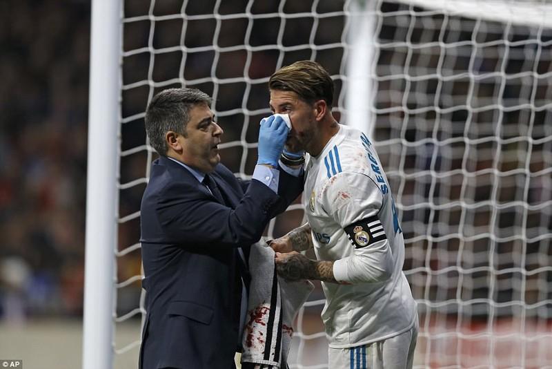 Derby thành Madrid nhạt nhòa, bạo lực và penalty... hụt - ảnh 4