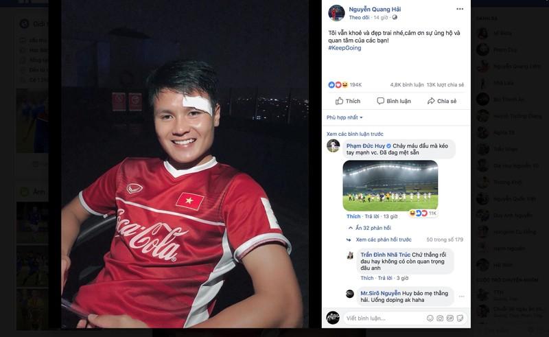 Quang Hải: 'Tôi vẫn khỏe và đẹp trai' - ảnh 2