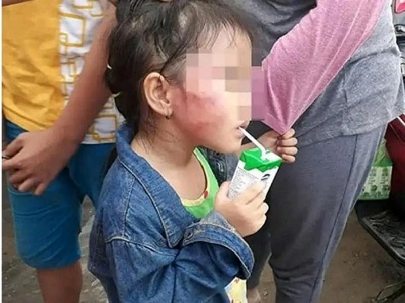 Khởi tố, bắt tạm giam cô giáo bạo hành trẻ ở Bình Chánh - ảnh 1
